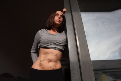 Març és el mes de l'endometriosi i el dia 14 se celebra el Dia Mundial. Voleu conèixer-la?